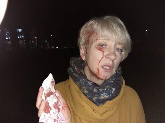 Три версии нападения насудью Гольник вПолтаве