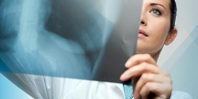 Медицинские будни: когда кременчужанам рентгеновский снимок делают бесплатно