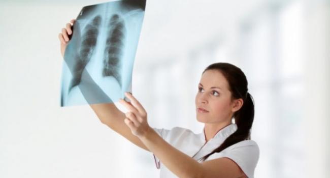В Кременчуге проходит месячник борьбы с туберкулезом