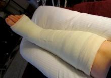 На фирме «Вепр» женщина упала с лестницы