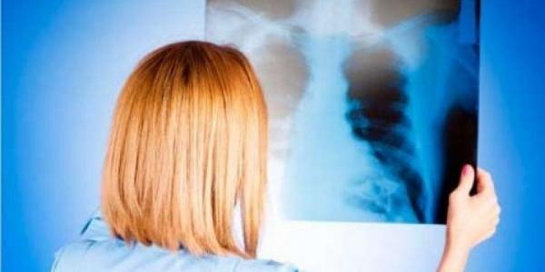 В Кременчуге от пневмонии умер еще один пациент