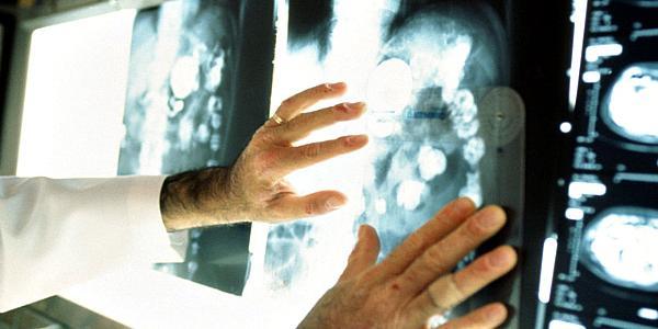 В Кременчуге растет число смертей из-за рака, но в Полтаве рак «косит» людей больше