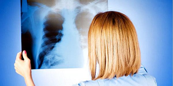 В Горишних Плавнях от пневмонии умер мужчина