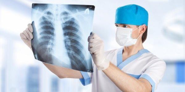 На Полтавщине зарегистрировали первый случай смерти от гриппа