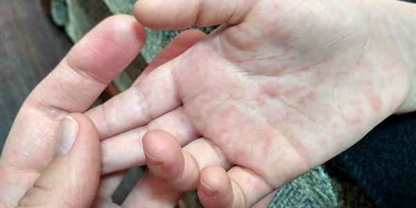 Поряд з Кременчуком кількість захворілих на кір більшає