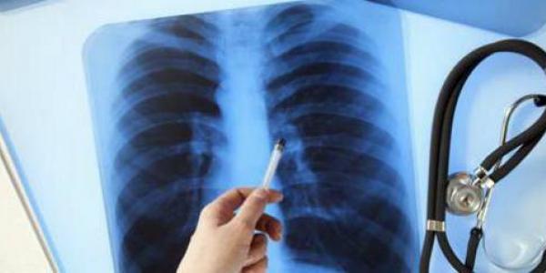 Кременчуг медленно, но уверенно идёт к эпидемии туберкулёза