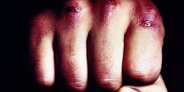 43-летний кременчужанин забил 55-летнего друга до полусмерти