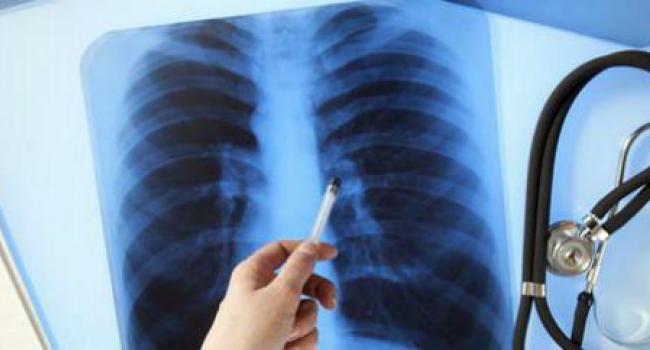 Больная туберкулезом кассир кременчугского супермаркета призналась, что флюорографию проходила 8 лет назад