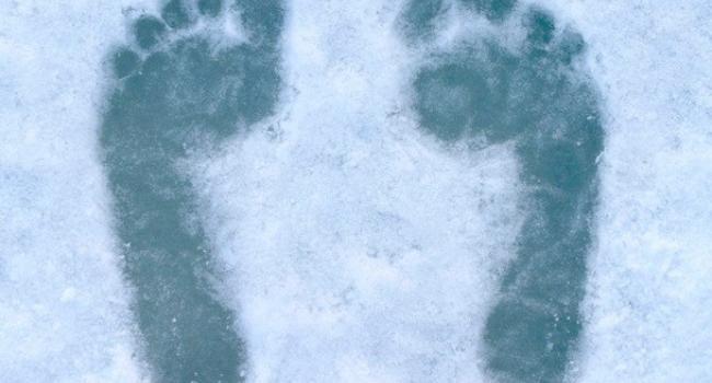 В Кременчуге госпитализировали мужчину с обморожением рук и ног